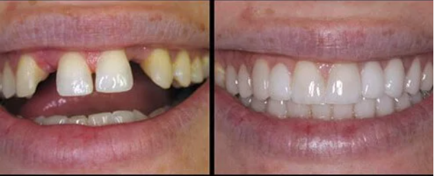 teeth with and without a dental bridge