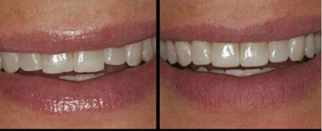 teeth with and without enamel shaping