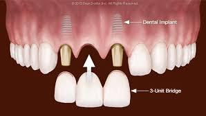 teeth with a 3 unit bridge