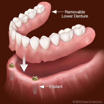 diagram of a removable lower denture