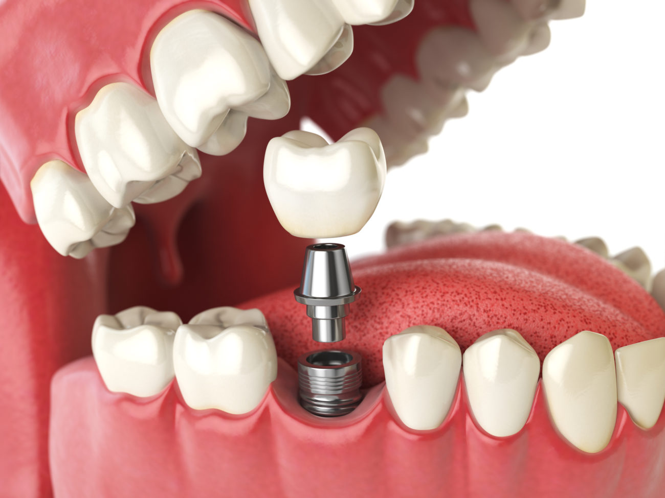 mouth with a single tooth implant