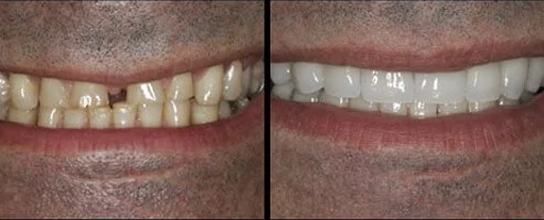 teeth with and without a veneer