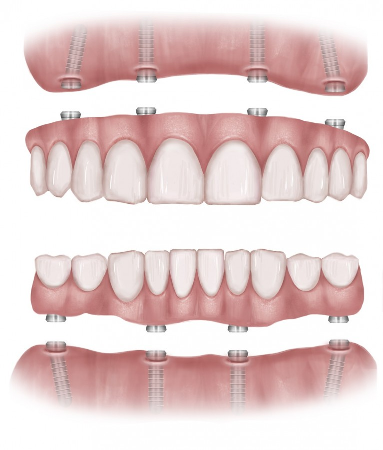 diagram of all-on-4 implant